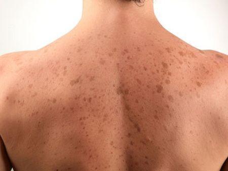 Cosmetici da pigmentazione su pelle